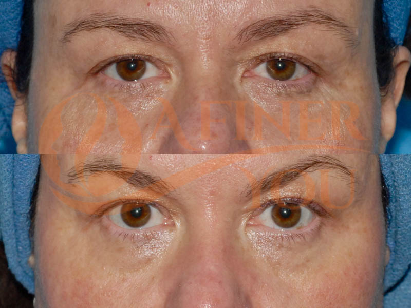 Botox injection frown line and crow's feet; skin resurfacing with fractionated CO2 10 day result