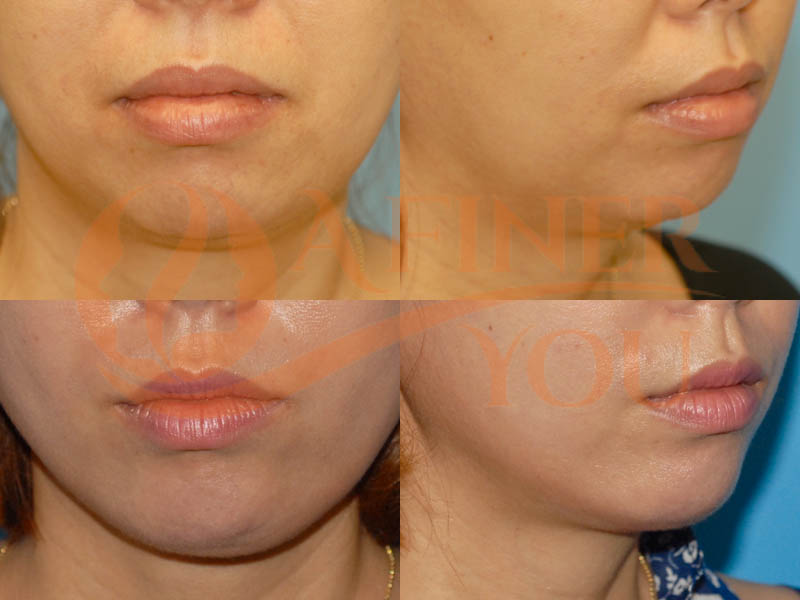 Chin implant 6 month result