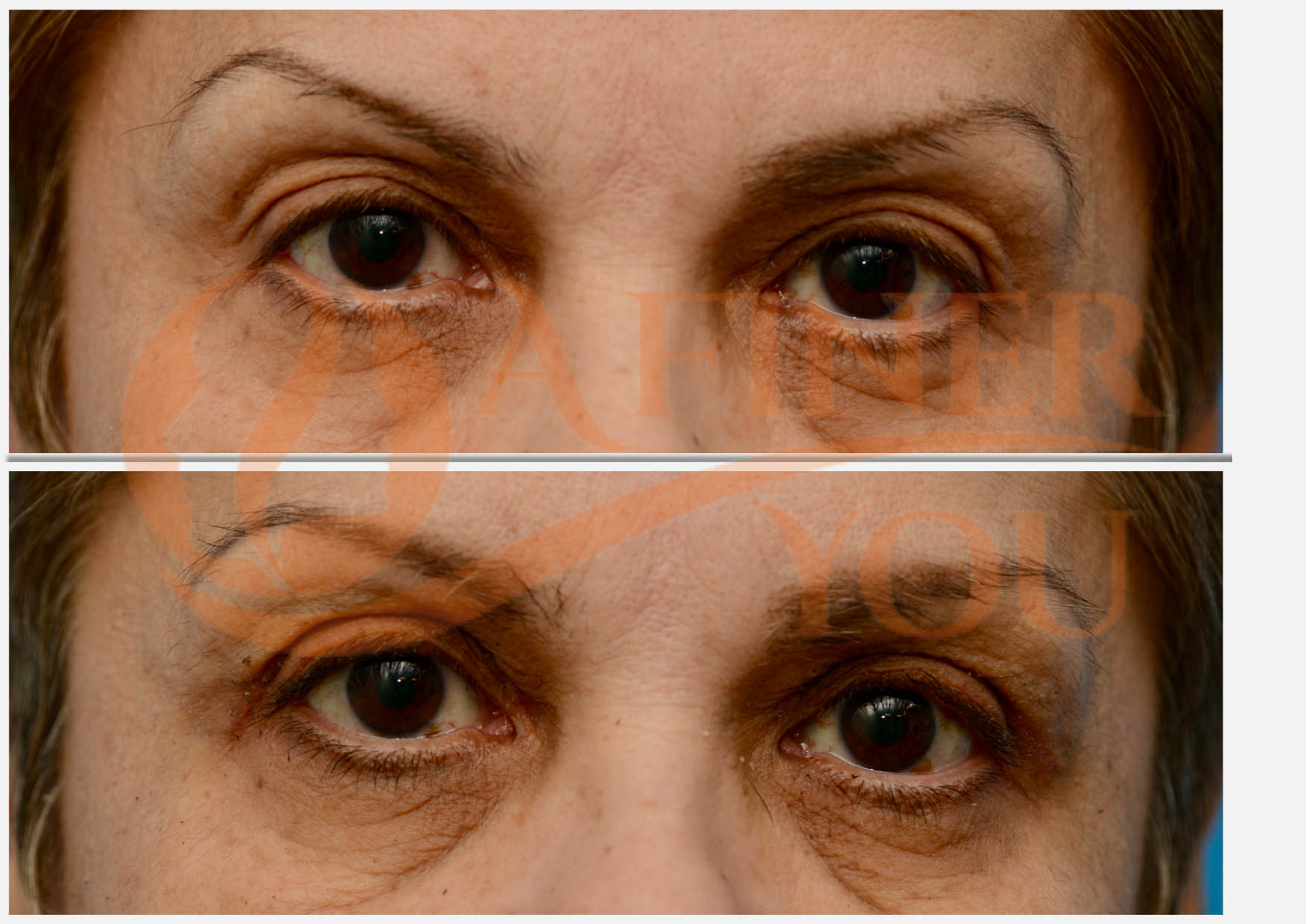 Upper blepharoplasty 1 month result
