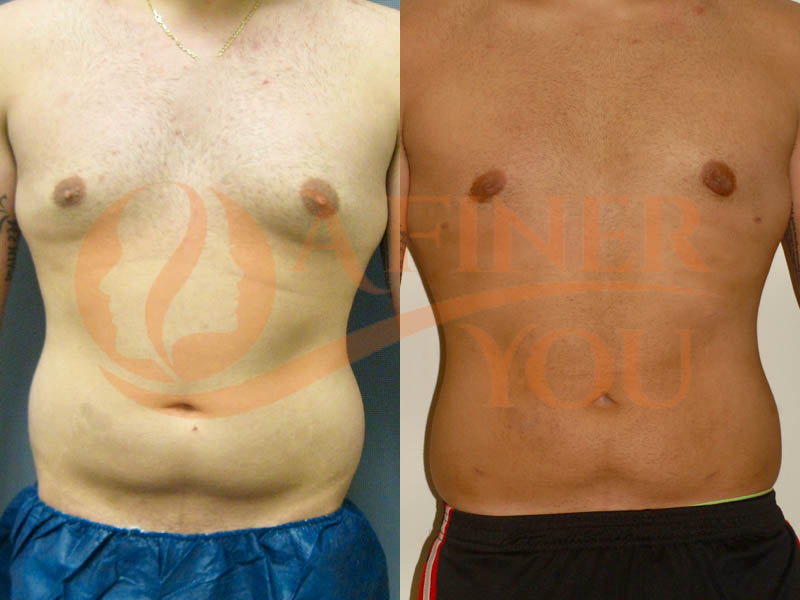 Gynecomastia reduction with liposuction and behind nipple tissue removal 6 month result