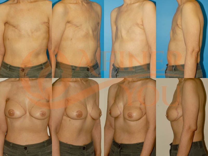 Delayed breast reconstruction pedicle TRAM 22 month result