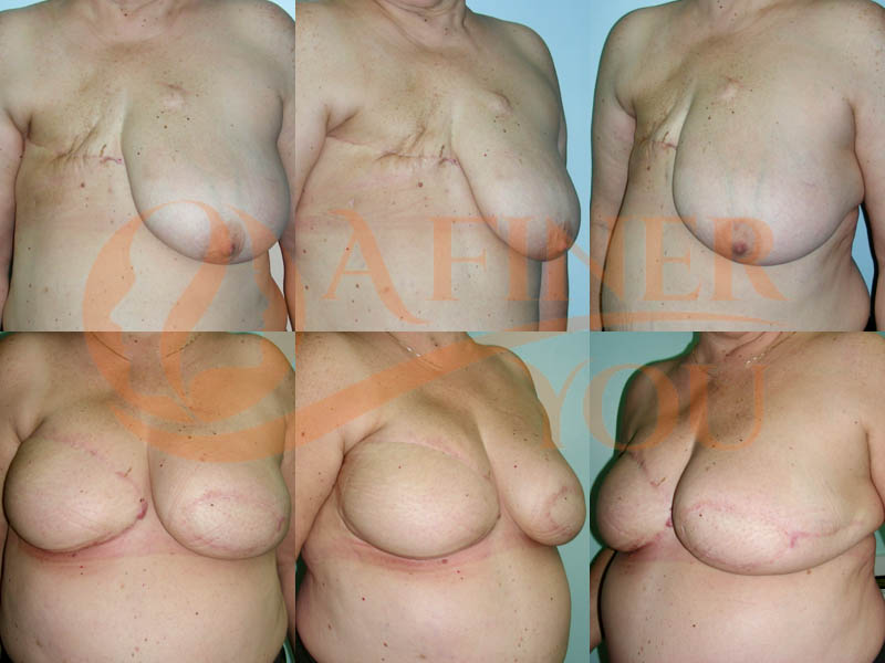 Delayed breast reconstruction pedicle TRAM 20 month result
