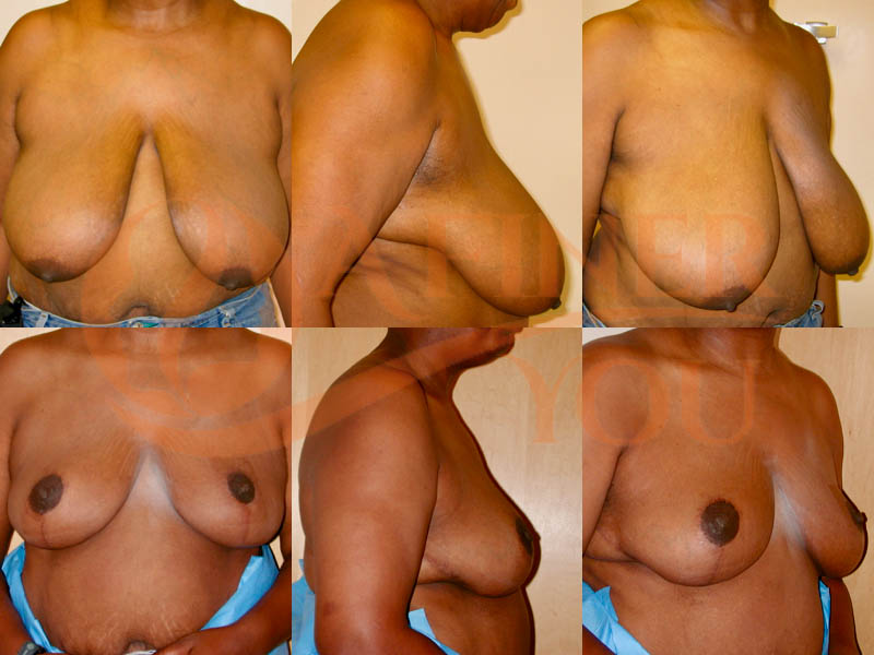 Breast reduction traditional scar 6 month result