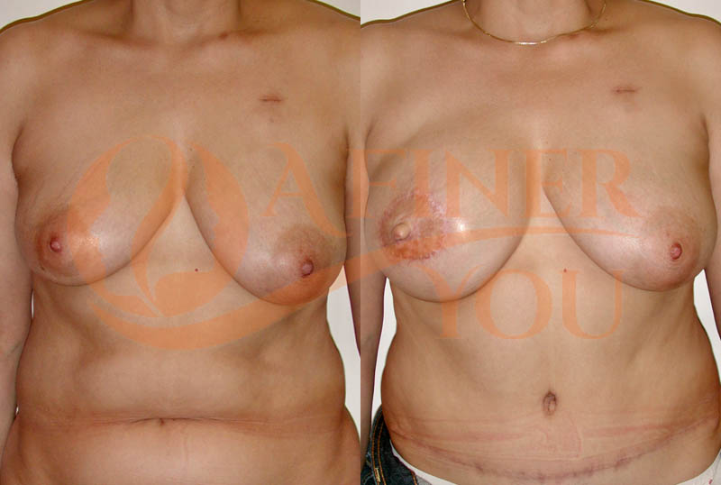 Breast reconstruction with pedicle TRAM 2 year result