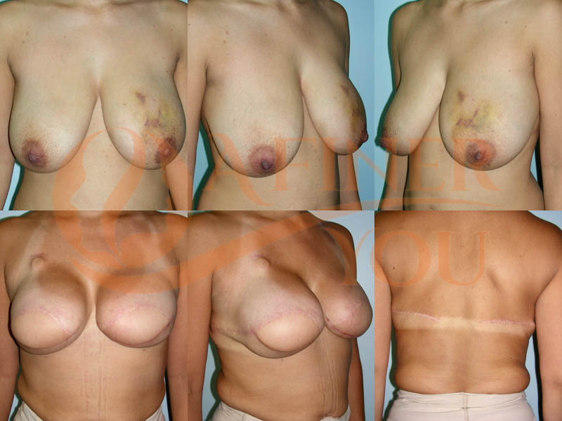 Breast reconstruction with latissimus dorsi flaps and silicone implants 20 month result