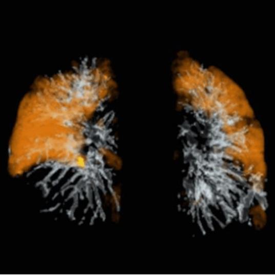 pulmonaryvasculardisease.jpg