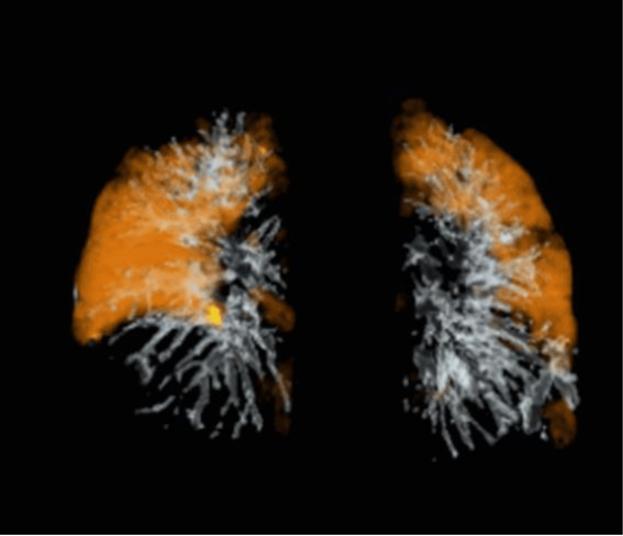 pulmonaryvasculardisease.png