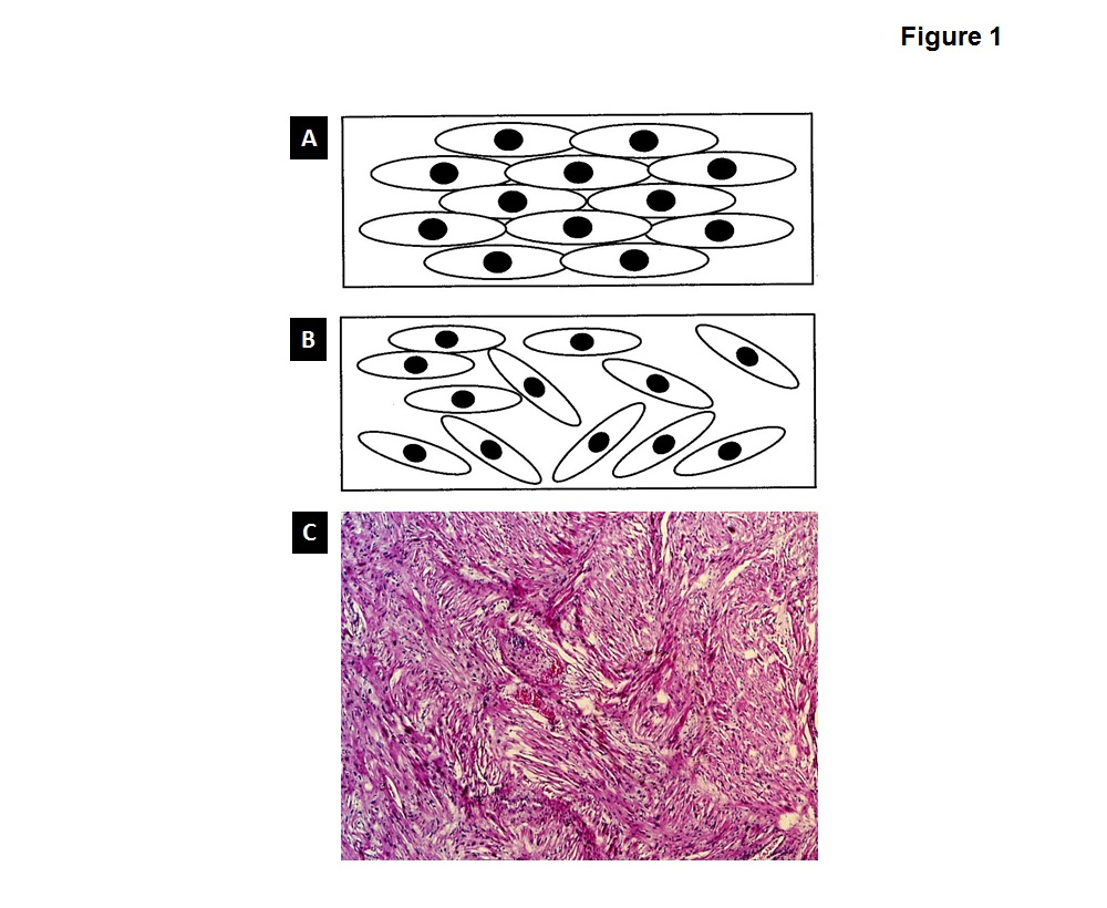 Figure 1:  A. Represents normal cell structure  B. Represents abnormal structure known as myocardial disarray  C. A pathology slide of a heart with HCM, not the pattern of cells showing myocardial disarray.   It is important to note that myocardial disarray may occur in patches throughout the heart and not be present in 100% of the muscle.