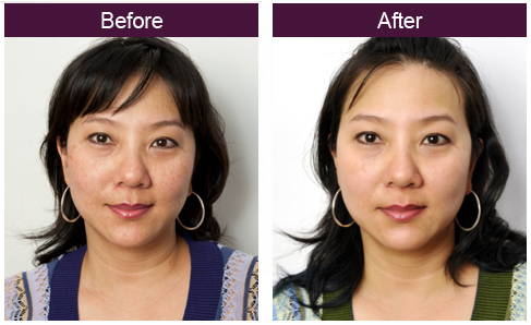 the-petrfect-derma-before-after.jpg
