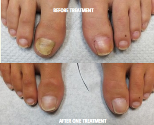 laser-nail-fungus-removal-before-after.png