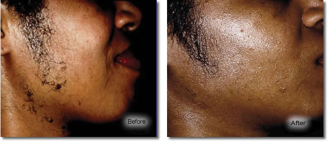 laser-hair-removal-before-after.jpg