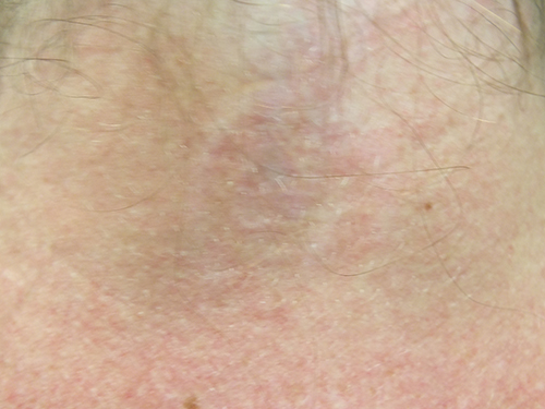 01b-Tattoo-Removal-Oregon-After.jpg