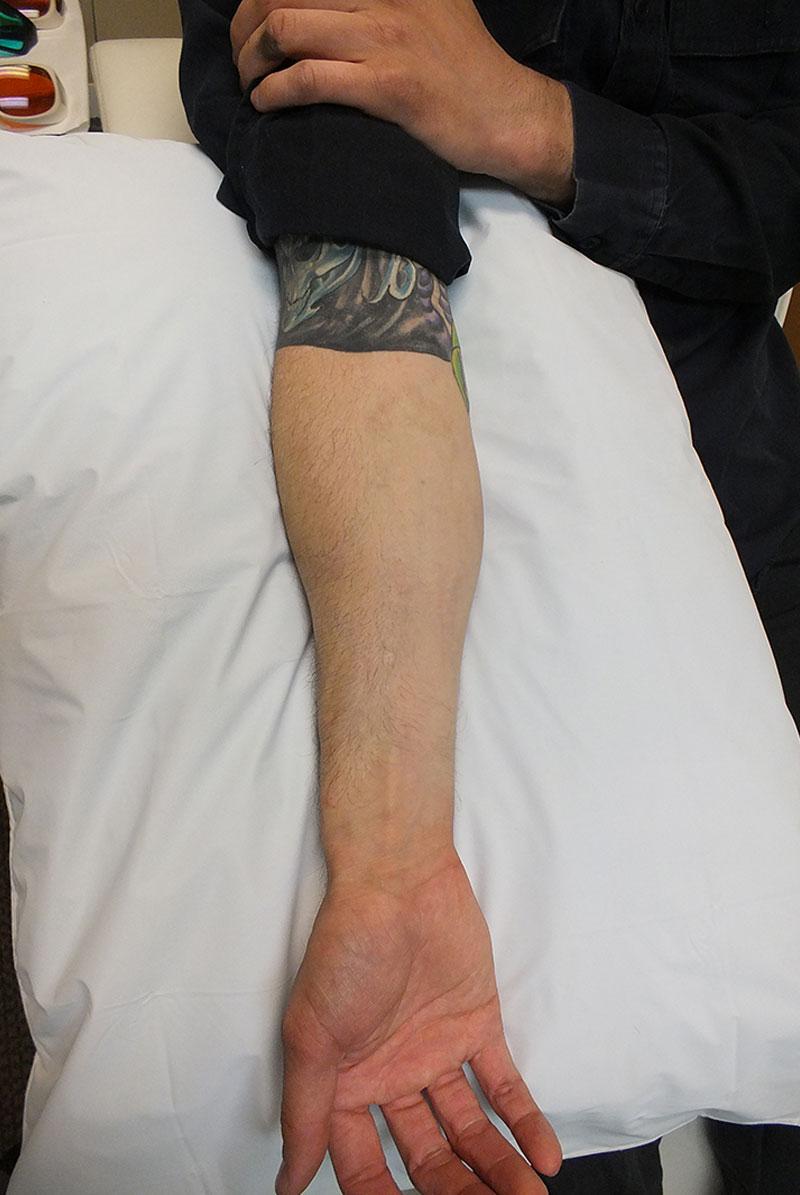 02b-Tattoo-Removal-Oregon-After.jpg