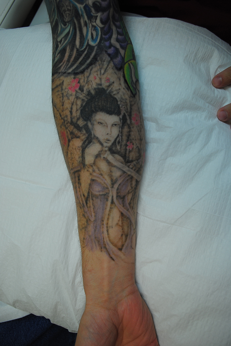 02-Tattoo-Removal-Oregon-Before.jpg