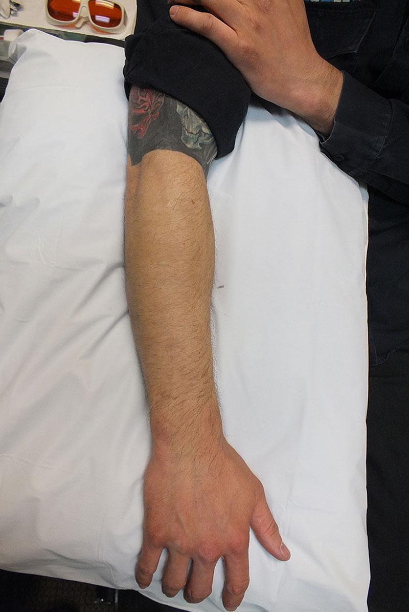 03b-Tattoo-Removal-Oregon-After.jpg