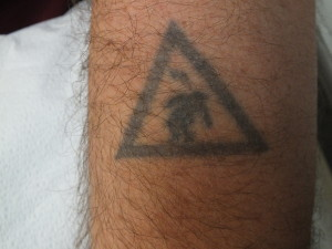 06-Tattoo-Removal-Oregon-Before.jpg