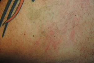 11b-Tattoo-Removal-Oregon-After.jpg
