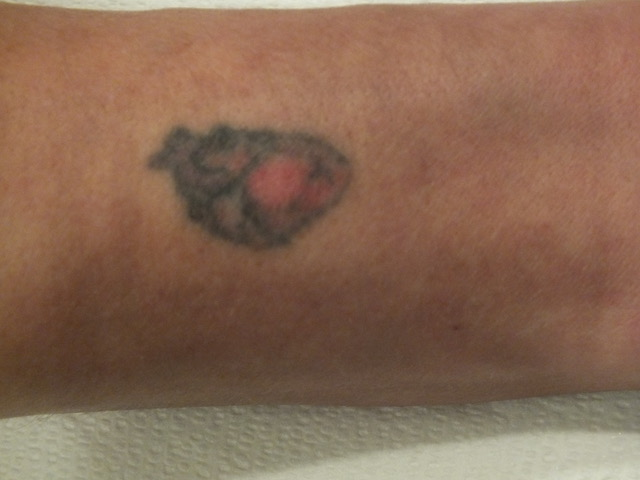 17-Tattoo-Removal-Oregon-After.jpg