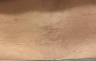 18b-Tattoo-Removal-Oregon-After.jpg