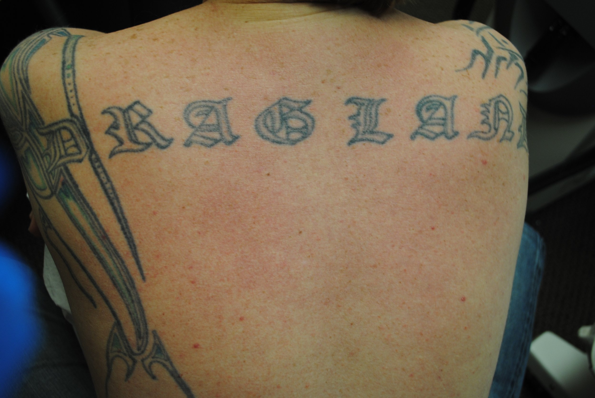 24-Tattoo-Removal-Oregon-Before.jpg