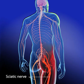 """Sciatica   Sciatica is a symptom. It consists of leg pain. You might feel weakness, numbness, or burning or tingling ('pins and needles"""") sensation down your leg, possibly even in your toes. Sciatica can occur suddenly or it can develop gradually."""