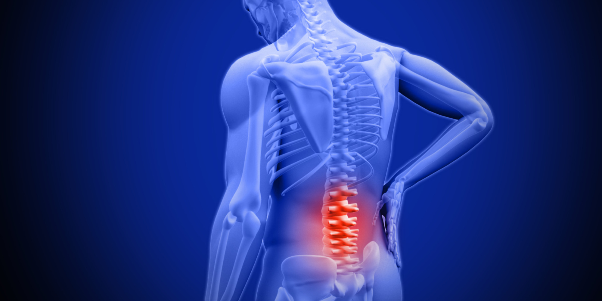 Lower Back Pain   Low back pain is caused by injury to a muscle (strain) or ligament (sprain). Common causes include improper lifting, poor posture, lack of regular exercise, fracture, ruptured disk, or arthritis.