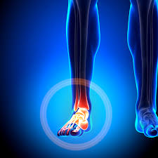 Foot and Ankle Pain   Foot pain may be caused by compensatory movements to the feet and ankles too. This may lead to pain, and if not adjusted properly, long term damage to the bones or tendons in the feet may occur.