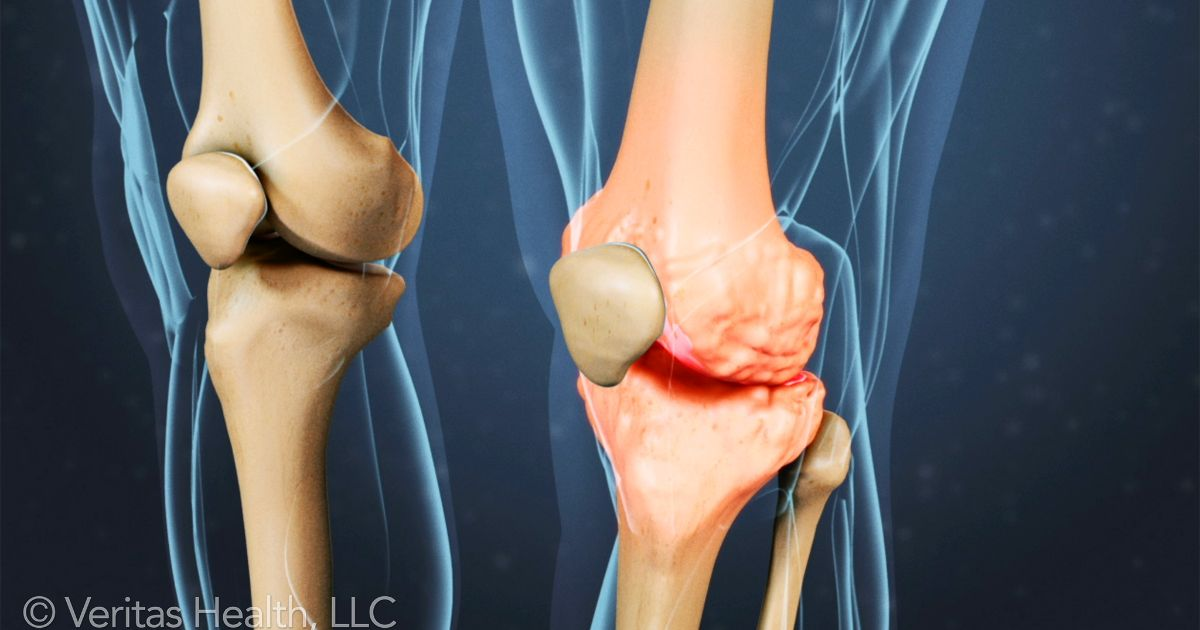 Degenerative Arthritis   A condition involving chronic cartilage breakdown in the joints resulting in painful joint inflammation. When the joints articulate, pain and limits on motion are caused by the lack of cartilage.