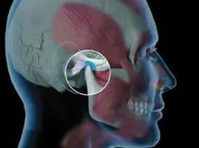 TMJ Dysfunction (Jaw Pain or Clicking)   Temporomandibular joint dysfunction (TMD, TMJD) is a term covering pain and dysfunction of the muscles of mastication (the muscles that move the jaw) and the temporomandibular joints (the joints which connect the mandible to the skull.