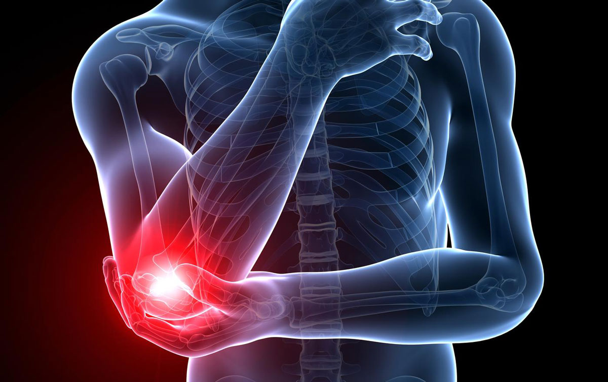 Tennis Elbow (Lateral epicondylitis)   Tennis elbow is a type of tendinitis. The swelling of the tendons are bands of tough tissue that connect the muscles of your lower arm to the bone.