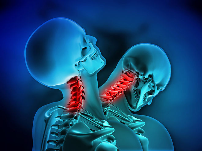 Whiplash   Whiplash is caused by an abrupt backward and/or forward jerking motion of the head, often as a result of a car accident. Symptoms of whiplash may be delayed for 24 hours or more after the initial trauma.