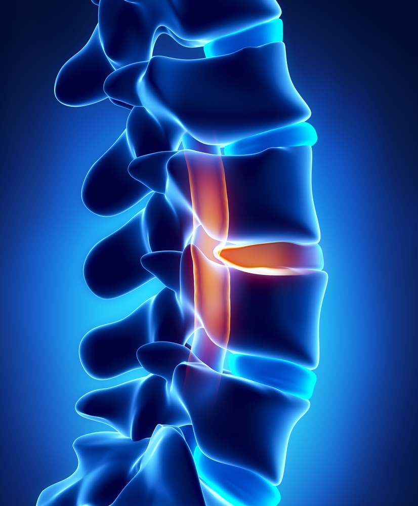 Disc Herniation   The bones that form the spine in your back are cushioned by small, spongy discs. When the discs are healthy they act as shock absorbers. A disc herniation occurs when the spongy disc is damaged, bulged or breaks open.