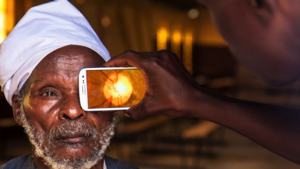 Peek Vision helps diagnose vision problems without the need to visit an optician in person