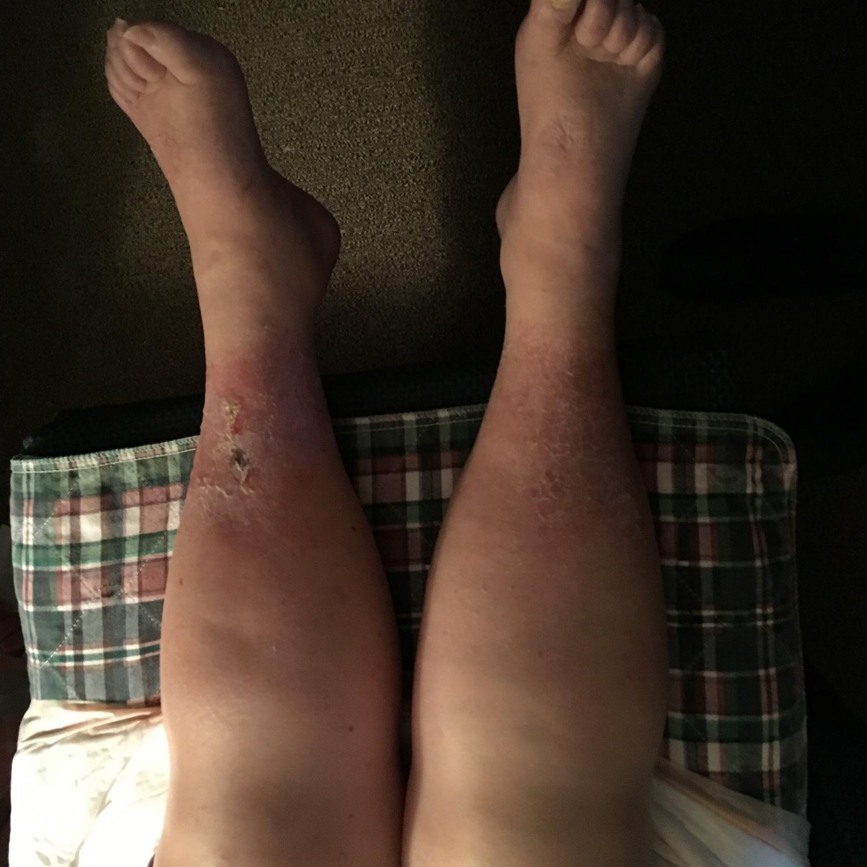 untreated swollen legs