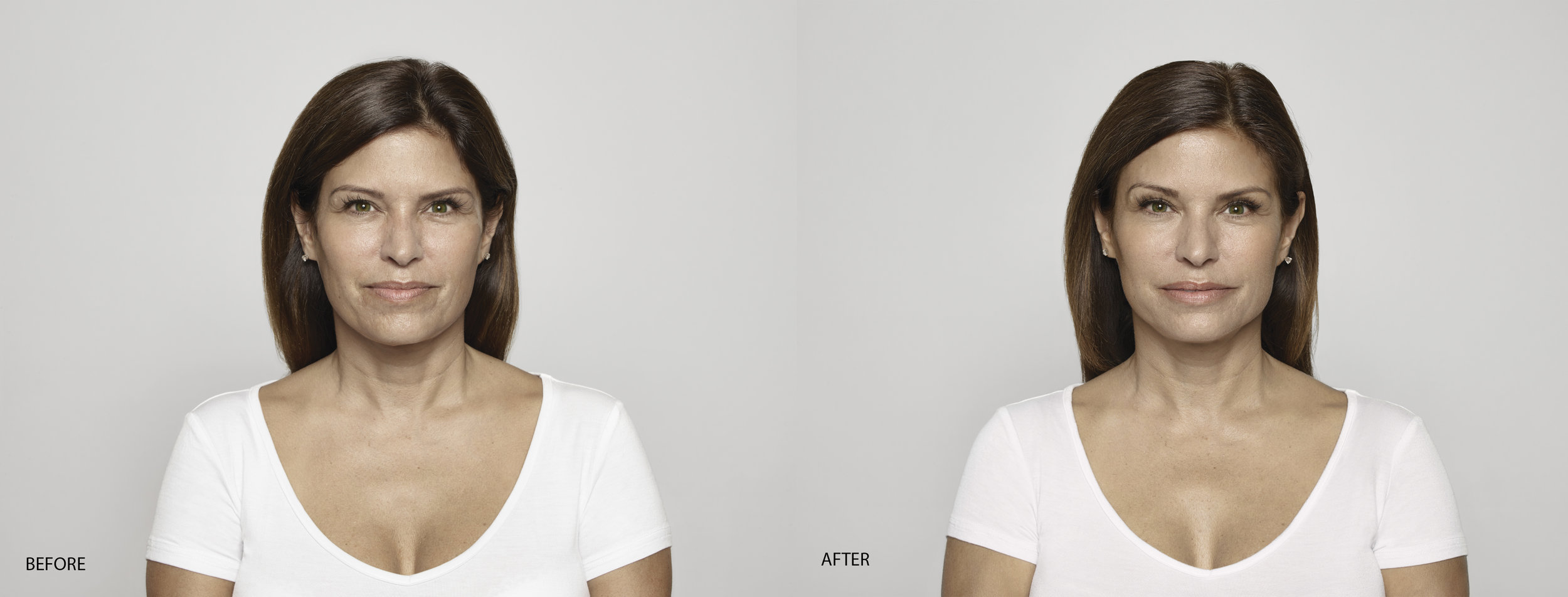 Restylane® - Restylane®can be used to add volume and fullness to the skin to correctmoderate to severe facial wrinkles and folds, such as the lines from your noseto the corners of your mouth (nasolabial folds).Restylane may also be usedfor lip enhancement in patients over 21 years.