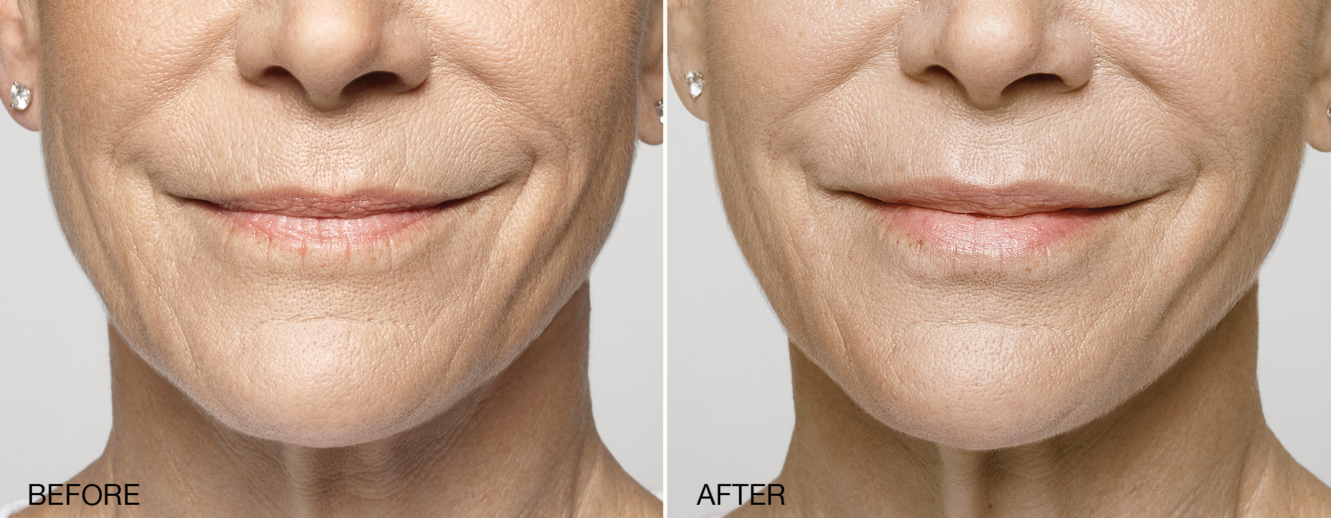 Restylane® Silk - TheLips You Want. Silkier, smoother, natural-looking lipsFinally, a filler that can help you achieve your ideal lips.Restylane®Silkis the first FDA-approved product specifically designed for lip augmentation and the smoothing of wrinkles around the mouth in patients 21 years of age and older.