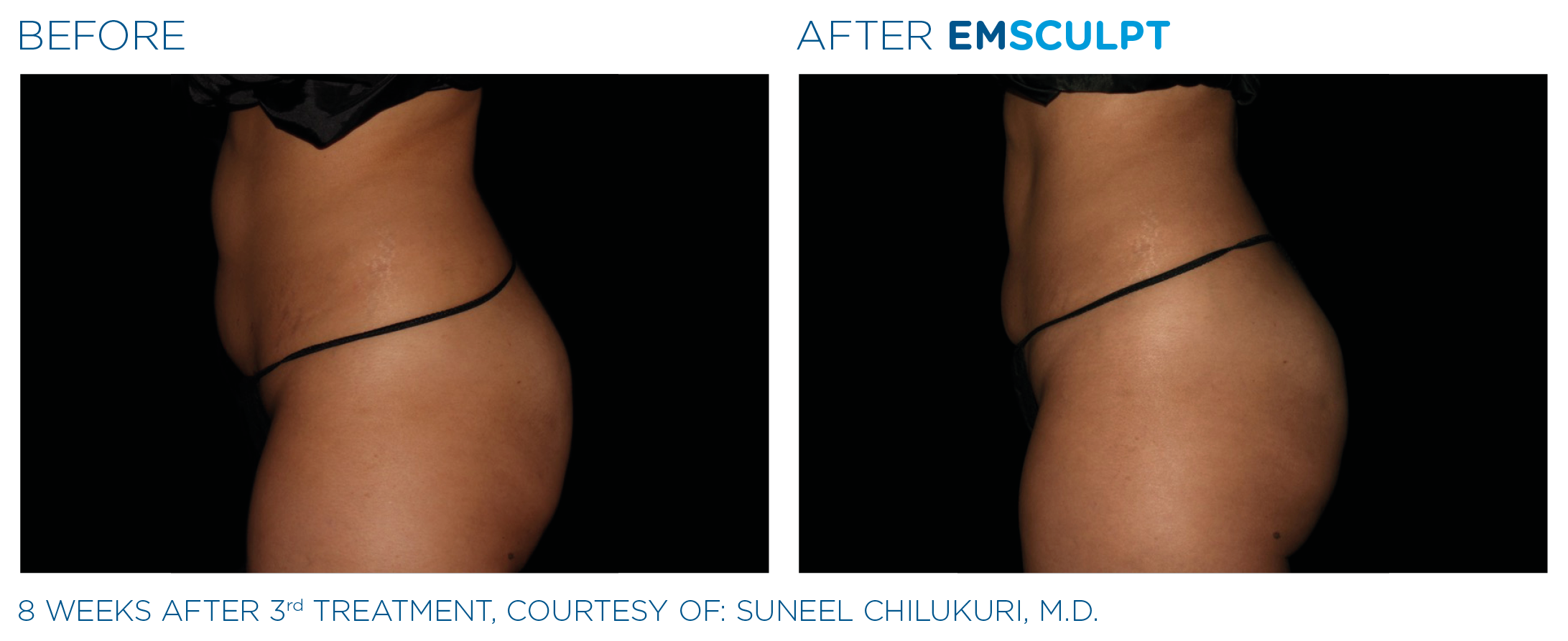 Emsculpt_PIC_Ba-card-female-buttock-072_ENUS100.png