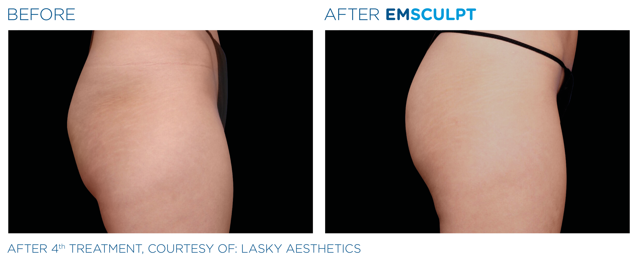 Emsculpt_PIC_Ba-card-female-buttock-049_ENUS100.png