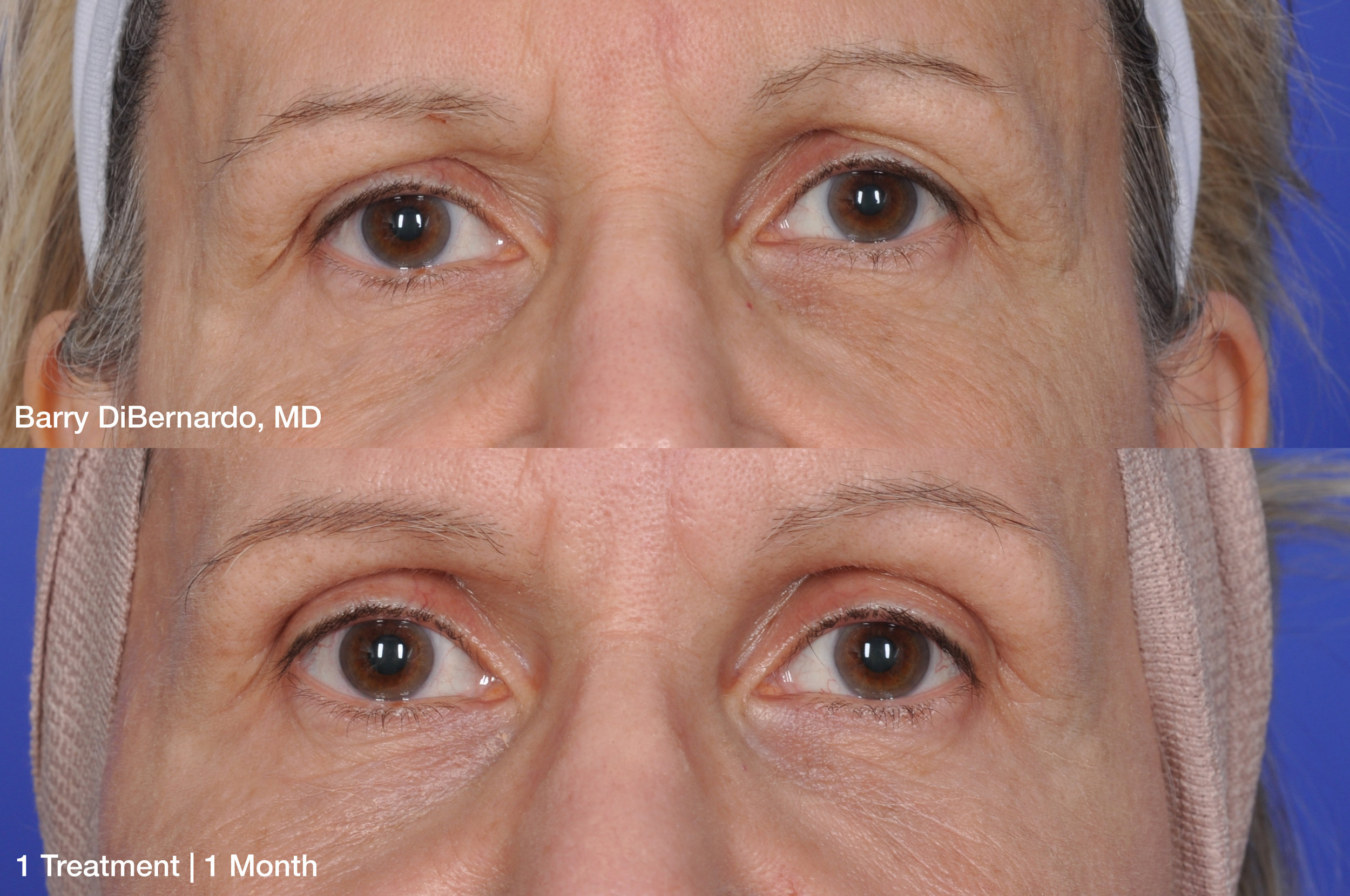 Barry-DiBernardo_ThermiSmooth-Face-Eyes_1-treatment-1-Month_Patient-1.jpg