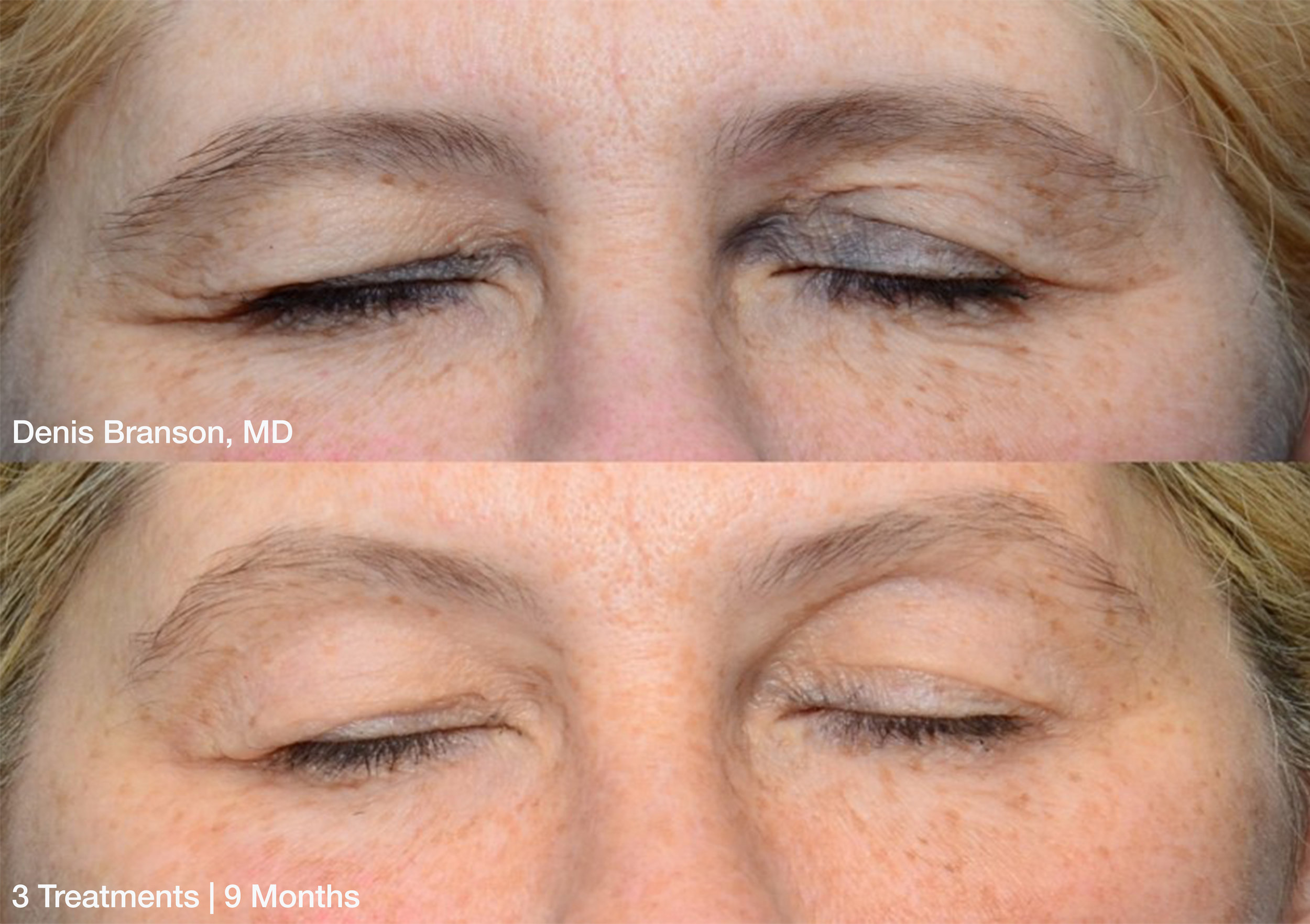 Denis-Branson_ThermiSmooth-Face-Eyes_3-treatments-9-months_Patient-1.jpg