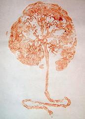portland placenta.jpeg