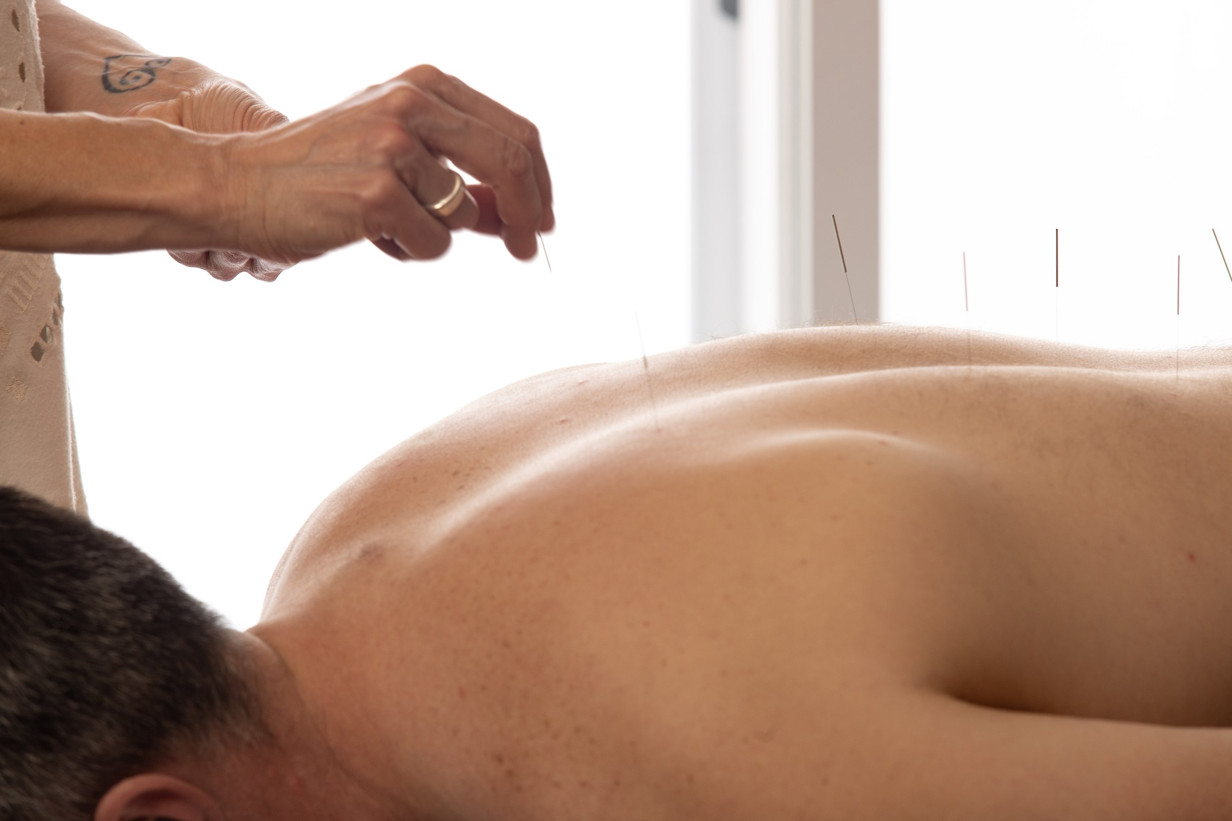 What Is Acupuncture? - Acupuncture is one of the oldest healing arts in the world, ranging back to over 3,000 years. It's theory is based on the flow of energy in the body called qi (chee). When qi flow is disrupted due to trauma, poor diet, medications, stress or other conditions, pain or illness result. Acupuncture focuses on correcting these imbalances of energy flow by inserting ultra-thin, hair like needles under the skin to stimulate specific points in the body. Stimulation of acupuncture points allows even flow of qi, restoring the body's balance and relieving pain and other symptoms.Acupuncture's complex system of diagnostic methods take into consideration the person as a whole, not just isolated symptoms. The aim is to treat the underlying cause of the symptom and thus improving quality of life.Acupuncture works with the body, harmonizing and balancing energy. It improves circulation, releases endorphins, and allows the body to heal itself more quickly and more completely. Best of all, acupuncture is safe and side-effect free, making it a wonderful medical option especially during pregnancy.