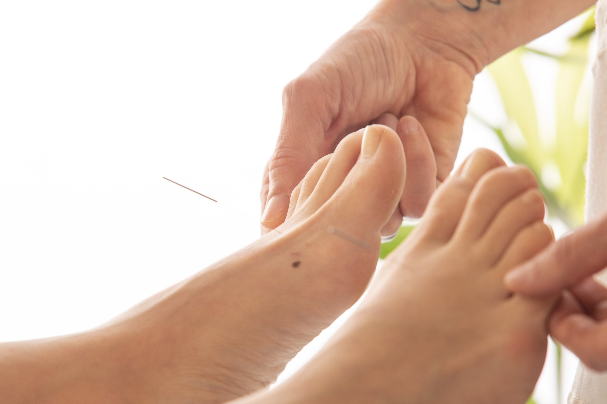 Does Acupuncture Work? - Yes. Acupuncture has been recognized by many medical insurance companies, The National Institute of Health and The World Health Organization to help with many medical conditions, fertility concerns including absolute infertility and for overall health.