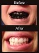 It Works! - Why use chemical bleaches when activated charcoal works great to whiten teeth.