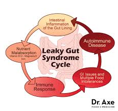 Leaky Gut - Your foods end up leaking into your gut causing your pain