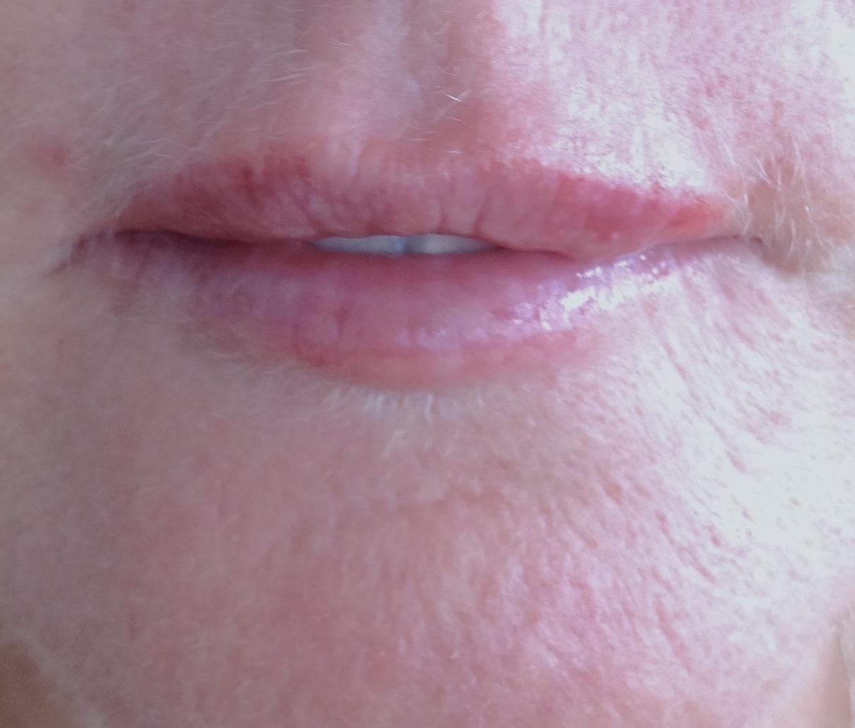 Lips After Filler