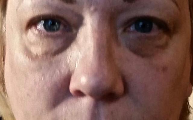 Tear Troughs Before Filler