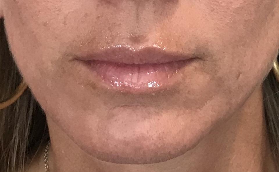 Lips Before Filler