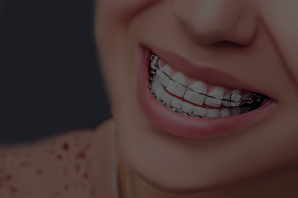 Orthodontics - Also known as 'teeth braces', this is focused on fixing the alignment of your jaw and teeth.Featuring a new procedure such as InvisAlign, the clear alternative to Braces.