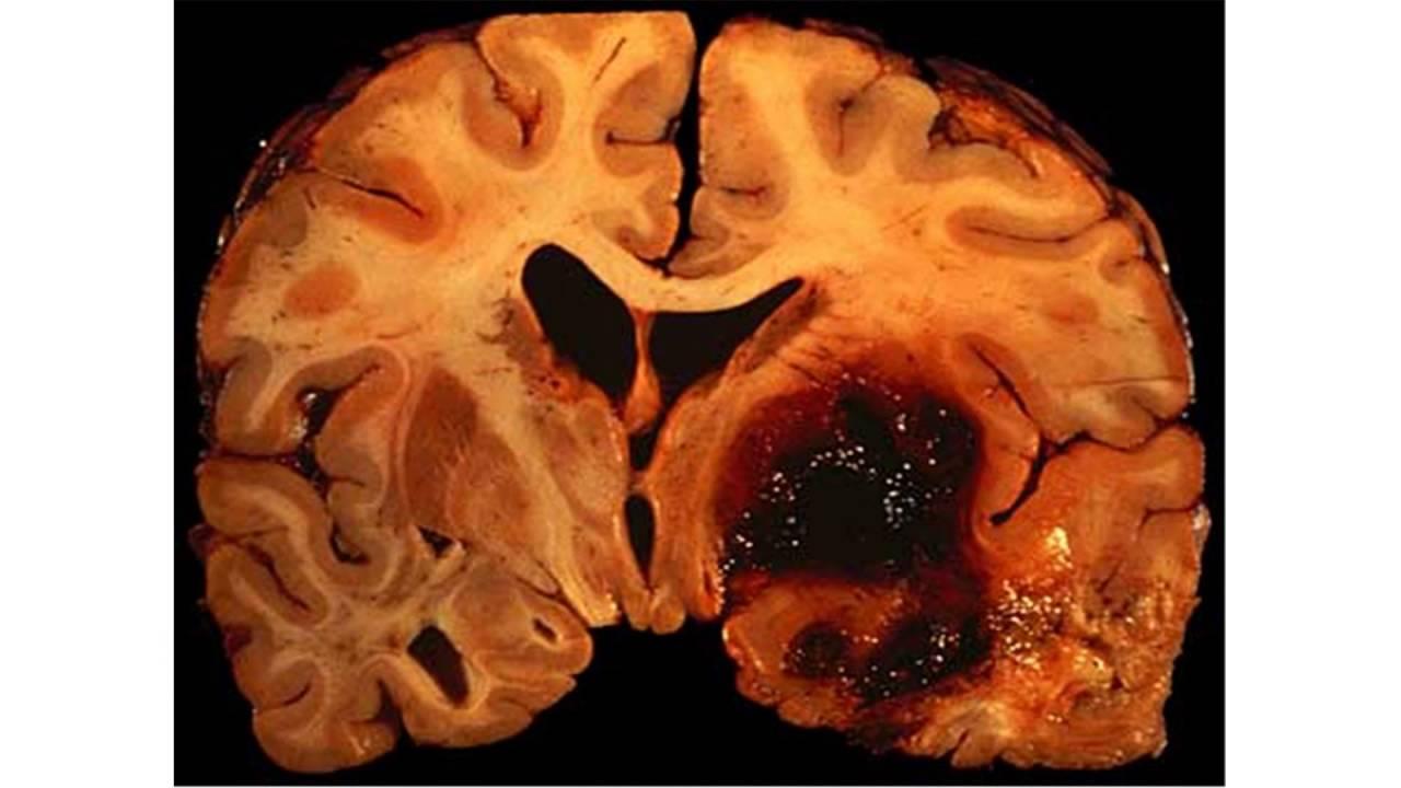 Large left temporal hemorrhagic infarct.
